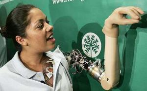 woman-with-bionic-arm